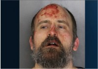 Travis Lanning's mugshot after his arrest Monday morning. His first court appearance is scheduled for Wednesday, and he faces a felony charge of assault with a deadly weapon.